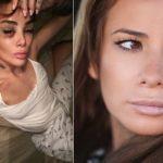 Айза Анохина сделала пластику: фото до и после